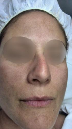 Quitar manchas en la cara luminous de Covermark despues frontal antes