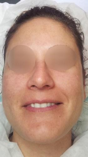 Quitar manchas en la cara luminous de Covermark despues frontal despues