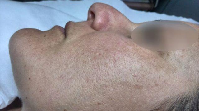 Tratamiento manchas